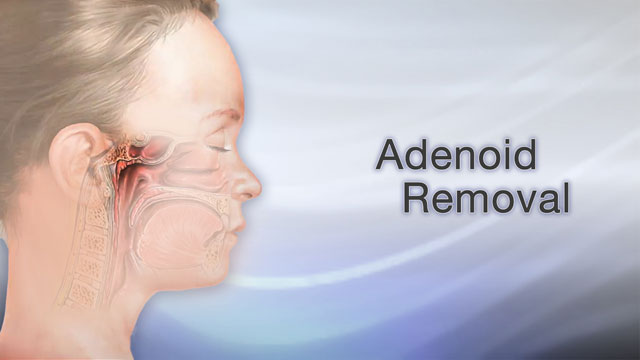 <div class=media-desc><strong>Adenoid removal</strong><p>Maybe your child snores a lot. Maybe your child gets a lot of ear infections or has a lot of sore throats. Maybe your child needs to have his tonsils removed. If so, chances are your child also needs the adenoids removed. Let's talk about adenoid removal, or adenoidectomy. So, why do the adenoids need to be removed? The adenoids are glands, located between the airway your child breathes into through their nose, and the back of your child's throat. Like your child's tonsils, the adenoids can often become swollen. When this happens, your child's airway can become blocked, and he may have trouble breathing through his nose. Your child may even stop breathing at times during sleep. Typically, your child's doctor will use a special mirror to see if the adenoids are swollen. Your child may also need an X-ray. Often a child's swollen adenoids have been a problem for a while. The doctor may have tried to treat the chronic swelling with prescription medications, and if they are still causing problems, perhaps now it's time to remove them. So, let's go over what happens during an adenoidectomy. Your child will be given general anesthesia. He'll be unconscious and unable to feel pain. The surgeon will prop your child's mouth open with a small instrument, then remove the adenoid glands, and probably remove the tonsils as well. Your child will probably go home the same day as surgery. Complete recovery takes about one to two weeks. There might be some bleeding in your child's throat or mouth, so you'll want to encourage him to spit the blood out instead of swallowing it. Have him gently gargle often with baking soda mixed with water. Soft foods and cool drinks will make his throat feel better too. Adenoidectomy is one of the most common reasons children have surgery. But surgery doesn't have to be all bad. Your child can look forward to a steady diet of pudding, ice cream, and other soft and fun foods, until he feels better. And hopefully your child can look forward to fewer sore throats, ear infections, and more normal breathing, in the future.</p></div>