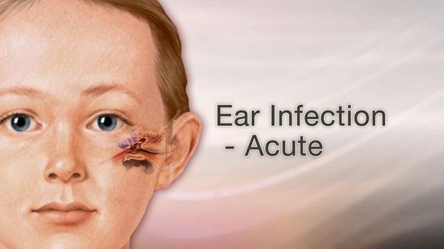 <div class=media-desc><strong>Ear infection - acute</strong><p>Is your child irritable, inconsolably crying, feverish, and having trouble sleeping? If so, your child may have an ear infection. Ear infections are one of the most common reasons parents take their children to the doctor. The most common type is called otitis media, which means an inflammation and infection of the middle ear. The middle ear is located just behind the eardrum. The Eustachian tube runs from the middle of each ear to the back of the throat. This tube drains fluid normally made in the middle ear. If the tube gets blocked, fluid can build up, leading to infection. Ear infections are common in infants and children because their tiny. Eustachian tubes become easily clogged. They're often caused by allergies, colds, and excess mucus and saliva produced during teething. Infants with an ear infection will often be irritable. You may have a hard time consoling their crying, and your child may have a fever and not sleep very well. Older children may have an ear ache and tell you their ear feels full. Because ear infections have fluid behind the ear drum, you can use an electronic ear monitor to detect this fluid at home.