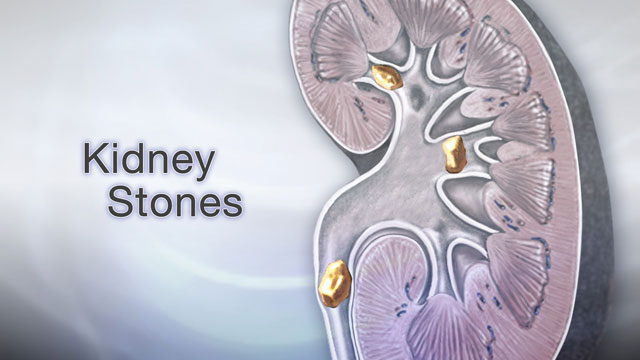 <div class=media-desc><strong>Kidney stones</strong><p>If you ever have severe pain in your belly or one side of your back that comes and goes suddenly, you may be passing a kidney stone. Let's talk about the painful condition of kidney stones. A kidney stone is a mass of tiny crystals in your kidney or urinary tract. Stones are quite common, and tend to run in families. They can form in weeks or months when your urine contains too much of certain substances. There are several kinds of kidney stones. Calcium stones are by far the most common kind. They often form in men between the ages of 20 to 30. Calcium can combine with other substances found in your food, like oxalate, phosphate, or carbonate, to form stones. Cystine stones can form in people who have cystinuria, a condition passed down through families in which stones are made from an amino acid called cystine. Struvite stones are found mostly in women who have urinary tract infections. These stones can grow very large and can block the kidney, ureter, or bladder. Uric acid stones are more common in men than in women. They can occur in people who have a history of gout or are going through chemotherapy. So, how do you know if you have kidney stones? Well, you may not have symptoms until the stone move down the ureter tubes through which urine empties into your bladder. When this happens, the stones can block the flow of urine out of your kidneys. The main symptom is severe sharp pain that starts suddenly, usually in your belly or one side of your back, and it may go away just as quickly. Other symptoms can include abnormal urine color, blood in your urine, fever, chills, nausea, and vomiting. So, what do you do about kidney stones? Well, your health care provider will perform a physical exam. You may need blood tests, kidney function tests, and tests that look for crystals in your urine. Several imaging tests, like a CT scan, can see stones or a blockage in your urinary tract. Treatment will depend on the type of stone you have, and how bad your symptoms are. Small kidney stones that are less than 5 mm in diameter will usually pass on their own. You should drink at least 6 to 8 glasses of water per day to produce a large enough amount of urine to help bring the stone out. Pain can be pretty bad when you pass a kidney stone, so your doctor may prescribe pain medicines to help as well as medications that will help the stone pass. Other medicines can decrease stone formation or help break down and remove the material that is causing you to make stones. You may need surgery if the stone is too large to pass, the stone is growing, or the stone is blocking your urine flow. Kidney stones are painful, but you can usually pass them without causing permanent harm. However, kidney stones often come back, so you and your doctor will need to work on finding the cause of your stone. Lastly, delaying treatment can lead to serious complications, so if you think that you have kidney stones see your doctor right away.</p></div>
