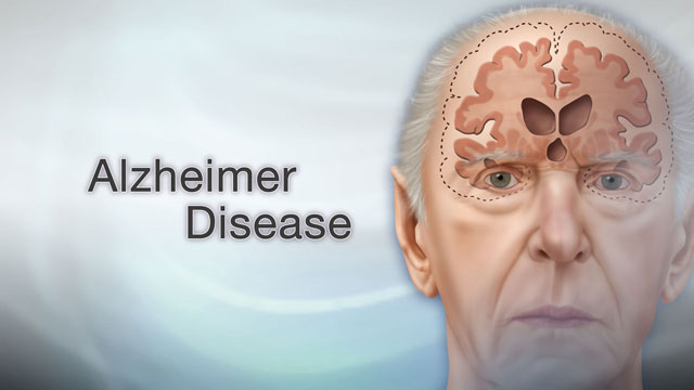 <div class=media-desc><strong>Alzheimer disease</strong><p>Imagine waking up this morning, and not being able to remember your own name, or recognize your spouse? While Alzheimer disease is a more gradual process, over time it can destroy memory to the point where people can't even remember the simplest and most important details of their lives. Let's talk more about Alzheimer disease. Alzheimer disease is a type of dementia, a loss of brain function that makes it harder and harder to think and speak. To understand what causes Alzheimer, we need to look inside the brain. In a normal brain, nerves send messages to one another. In people with Alzheimer disease, abnormal proteins clump in the brain, damaging nerve cells so they can no longer send the messages needed to think clearly. So, why do some people get Alzheimer, and others do not? Getting older itself doesn't cause Alzheimer disease. It's not a part of the normal aging process. Alzheimer does seem to run in families, though. So if you have a close relative, like a sister or parent, with Alzheimer, you may be more likely to get the disease. Usually when Alzheimer disease starts, people have trouble remembering simple things, like their phone number, or where they put their car keys. But, as the disease progresses, memory loss gets worse. People with Alzheimer find it hard to have conversations or complete simple tasks, like getting dressed. They can also become angry or depressed. Those in the later stages of the disease can no longer care for themselves. They lose the ability to recognize even close family members. To diagnose Alzheimer disease, doctors prescribe tests of mental ability. They also prescribe medical tests to rule out diseases that can make it harder to think clearly, such as a brain tumor or stroke. As far as treatments for Alzheimer disease, right now, there isn't a cure. A few drugs can slow memory loss and control depression and aggressiveness from the disease. Despite what you may have read, there isn't any proof that vitamins or other supplements can prevent or treat Alzheimer. However, eating a low-fat diet that's high in vitamin E and C, and rich in omega-3 fatty acids may keep your brain healthier. Alzheimer disease is different in each person. Some people decline quickly and die within just a few years, while others can live for two decades with the disease. If you have a family member with Alzheimer, talk to your doctor about ways to protect your own memory. And, call right away if you have any significant memory loss. Though it may be normal forgetfulness that comes with getting older, the sooner you get it checked out, the earlier you can start treatment if you need it.</p></div>