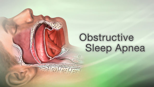 <div class=media-desc><strong>Obstructive sleep apnea</strong><p>Does your significant other complain that your snoring wakes them up during the night or keeps them from getting to sleep in the first place? Do they poke you, waking you up because sometimes they're afraid you stopped breathing? If so, you may have a condition called obstructive sleep apnea. When you have sleep apnea, the flow of air to your lungs pauses or decreases while you sleep. This happens because your airway has become narrow or blocked. While you sleep, all of the muscles in your body become more relaxed, including the muscles that help keep your airway open, allowing air to flow freely to your lungs. Normally, your upper throat still remains open enough during sleep to let air easily pass by. Some people, however, have a narrowing throat area. When the muscles in their upper throat relax during sleep, their breathing can stop, often for more than 10 seconds. When breathing stops, it's called apnea. Often you're not aware that you stopped breathing during sleep. But you may wake up not-refreshed, and feel drowsy and tired during the day. If you have this condition, your doctor will perform a physical exam, carefully checking your mouth, neck, and throat. You may take a survey that asks a series of questions about daytime sleepiness, sleep quality, and bedtime habits. If your doctor suspects you do have sleep apnea, you make take a polysomnogram, a sleep study that monitors you while you sleep. Once your doctor diagnoses sleep apnea, treatment will focus on keeping your airway open so that you breathe better while you sleep. Lifestyle steps can help. You can avoid alcohol or sedatives, and not just at bedtime, avoid sleeping on your back, and try to lose weight if you need to. And, exercise can help, even in the absence of weight loss. Your doctor can also prescribe a positive airway pressure using a machine, with a tight-fitting face mask, that pumps slightly pressurized air into your mouth during your breathing cycle. This keeps your windpipe open and prevents apnea episodes. Some people need to wear dental devices that keep their jaw forward during sleep. If lifestyle changes and devices don't help, surgery may be an option. Untreated sleep apnea, however, may lead to or worsen heart disease. Most people with sleep apnea who get treatment have less anxiety and depression than they did before. They often perform better at work or school, too. Naturally, having less daytime sleepiness can lower your risk for accidents at work, while you drive and give you more energy throughout the day.</p></div>