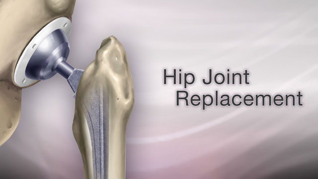 <div class=media-desc><strong>Hip joint replacement</strong><p>Your hip is hurting so bad, you can't sleep. It's hard to bathe, to clean, make it to the mailbox or shop at the mall. You may have severe arthritis in your hip, and there's a good chance you need a hip replacement. Hip replacements are usually done in people age 60 and older. If you need one, you probably have severe arthritis that limits your daily life, or perhaps have a hip fracture. Your hip joint is made up of two parts, the hip socket and the upper end of the thigh bone. One or both parts may be replaced during surgery. Your new hip will probably have a socket made of strong metal, a liner that fits inside the socket, usually plastic, a metal or ceramic ball to replace the round head of your thigh bone, and a metal stem attached to the thigh bone to make your joint more stable. So, how is the hip replacement procedure done? Well you won't not feel any pain during surgery because you will have medicine to make you fall asleep. The surgeon will cut and remove the head of your thigh bone and clean out your hip socket, removing cartilage and damaged or arthritic bone. The surgeon will put the new hip socket in place, insert the metal stem into your thigh bone, and place the ball for a new joint. Cement will probably hold the new joint in place. The surgery can take several hours. After the surgery, you will probably stay in the hospital for three to five days. As soon as the first day after surgery, you will be asked to start moving and walking around with a walker, crutches, or a cane. You will need physical therapy to strengthen your new joint for up to several weeks after your operation. Some people need a short stay in a rehabilitation center after they leave the hospital. At the rehab center, you will learn how to safely do your daily activities on your own. Your new hip should allow you to resume your daily activities once you've learned to move around on your own. In the long run, over 20 years or so, the joint may need to be placed again. But, in the short run, most or all of your pain should go away. The stiffness should go away. Your doctor should be able to monitor any problems and you should enjoy your new joint.</p></div>