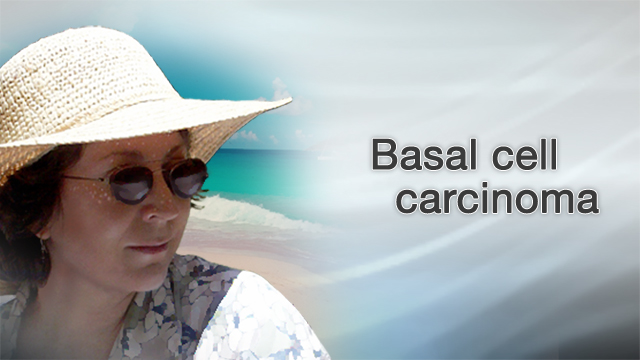 <div class=media-desc><strong>Basal cell carcinoma</strong><p>If you're like many Americans, you've spent hours in the sun trying to get the perfect, golden tan. But tanning has its downsides, including an increased risk of skin cancers like basal cell carcinoma. Most people who get skin cancer have the basal cell carcinoma form. The good news is that this type of skin cancer grows very slowly compared to the more dangerous melanoma type. The bad news is, it's still cancer. You're more likely to get basal cell carcinoma on the parts of your skin that are exposed to the sun, like your scalp, if you don't wear a hat when you go outside. People who are fair-skinned, with blonde hair and blue eyes are also at greater risk for skin cancer than those with darker skin. To find out if you may have basal cell carcinoma, first, do a skin check. Look in a mirror and check your body for any bumps that look white, pink, or brown, or that have crusted over and bleed but don't heal. If you spot anything unusual on your skin, see your dermatologist. The doctor can perform a biopsy removing some or all of the growth and sending it to a lab where it can be checked for cancer. Basal cell carcinoma doesn't grow very quickly, and it's not likely to spread. Your doctor should be able to remove the bumps by cutting, scraping, or freezing it off. Once the cancer is removed, there's a good chance you'll be cured. But because skin cancer can come back, you always want to keep a close eye on your skin, and call your doctor if you notice any new growths. A lot of diseases are beyond your control, but skin cancer is one condition you do have some control over. The best way to avoid getting it is to stop sun worshipping. Seek shade during the hours when the sun is strongest, usually from 10 a.m. to 4 p.m. and especially during the summer months. If you do have to be outside then, slather on a thick layer of sunscreen with an SPF of at least 30, one that protects against both UVA and UVB rays. Reapply it often, if you're in the water where the sunscreen can wash off. Also wear a wide-brimmed hat, sunglasses, and long sleeves. If you want a healthy glow, get one from a bottle. Rubbing on a tanning cream is safer than exposing your skin to the sun.</p></div>