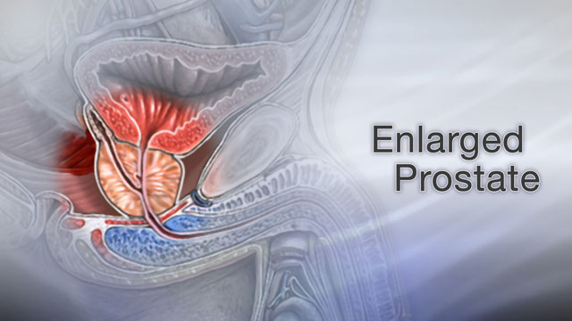 Enlarged Prostate Not Every Man Will Have To Deal With Age