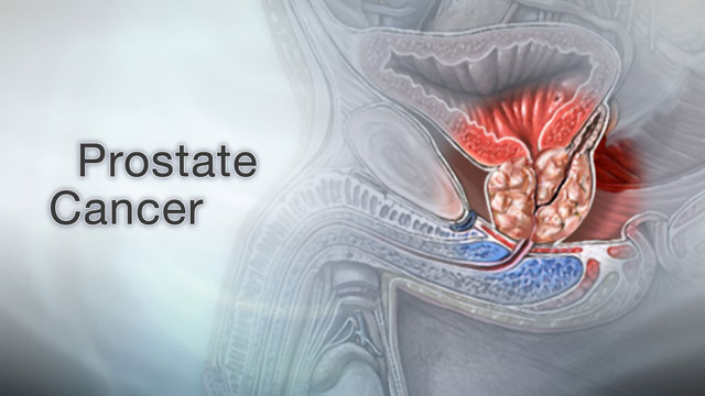 <div class=media-desc><strong>Prostate cancer</strong><p>As men get older, they have a lot of new worries to deal with, from hair loss, weight gain, perhaps even erectile dysfunction. In addition, cancer is one of the biggest concerns that older men face, especially prostate cancer, which is the leading cause of cancer death in men over 75. Younger men may not be very familiar with their prostate, the walnut-shaped gland that wraps around the urethra, the tube that carries urine out of the body. But as they get older, the prostate can start to cause problems. Men over the age of 60 are at increased risk for prostate cancer, especially if they're of African descent, they have a father or brother with the disease, or they eat a lot of burgers and processed meats in their daily diet. It can be hard to pinpoint prostate cancer symptoms, because they usually start late in the disease and they can mimic symptoms of a benign, enlarged prostate, which is also more common in older men. Symptoms like a slow urine stream, dribbling, blood in the urine, or straining while urinating can be signs of either condition. An enlarged prostate can also confuse the results of a PSA test, which is used to screen for prostate cancer. So, if your doctor thinks you might have prostate cancer, you may need a biopsy, which is a procedure that removes a small piece of prostate tissue and sends it to the lab to check for cancer. Then a scoring system called the Gleason grade is used to tell how fast your cancer might spread. Your Gleason grade will help decide what treatment you get. Early-stage prostate cancers that haven't spread are often removed with surgery, and then treated with radiation therapy to kill any remaining cancer cells. Prostate cancer surgery may affect your ability to have sex and control urine, so talk about these issues with your doctor before you have the procedure. Because prostate cancer tends to grow very slowly, your doctor may want to just monitor you with PSA tests and biopsies, and avoid treatment unless the cancer starts to spread. Prostate cancer that has spread is usually treated with surgery, chemotherapy, or hormone therapy. If your doctor discovers prostate cancer in its early stages, before it spreads, it's pretty easy to treat, and even cure. Treatments can also slow down prostate cancer that's spread, and extend your survival. Before you have to deal with a prostate cancer diagnosis, ask your doctor for ways to prevent and screen for the disease. Eating a healthy, low-fat diet that's high in healthy omega-3 fatty acids might help lower your risk. There are also drugs called finasteride and dutasteride that are used in some men to prevent prostate cancer. Talk with your doctor about the pros and cons of these drugs, as well as the possible benefits and risks of having your PSA levels tested.</p></div>