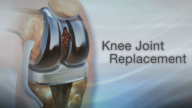 knee joint replacement your knee has been hurting for a while  and it hurts bad  you u0026 39 ve had