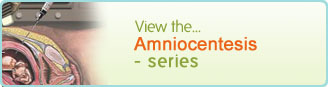 Amniocentesis - series