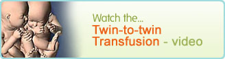 Twin-to-twin Transfusion video