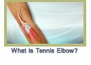 tenniselbow