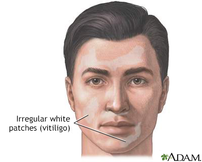 Vitiligo Information Mount Sinai New York