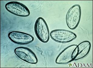 Pinworm eggs