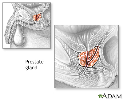 Best Supplement To Shrink Prostate