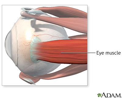 Eye Muscle Repair Series Um Rehabilitation Orthopaedic Institute