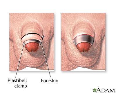 Circumcision Series Um Baltimore Washington Medical Center