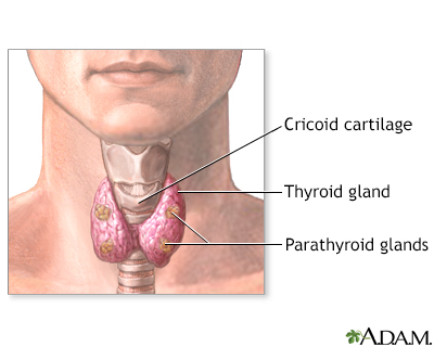 Parathyroid Gland Removal Information Mount Sinai New York