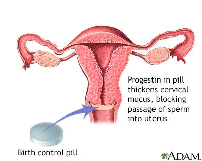 Progestin in pill