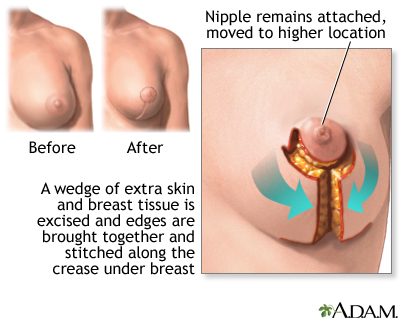Breast Reduction Information Mount Sinai New York