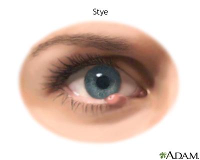 Eyelid bump Information | Mount Sinai - New York