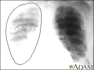 Aortic rupture - chest X-ray