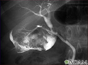 Cholecystitis - cholangiogram