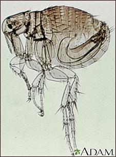 Fleas Information Mount Sinai New York
