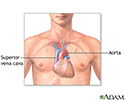 Heart transplant - series