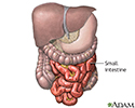 Meckel's diverticulectomy - normal anatomy