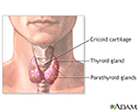 Parathyroidectomy - series