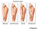 Fracture types (1)