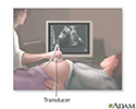 Ultrasound in pregnancy