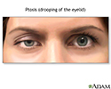 Ptosis, drooping of the eyelid