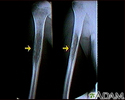 Ewings sarcoma - X-ray