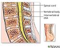 Lumbar spinal surgery - Series