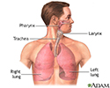 Lung transplant - series