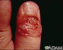 Herpetic whitlow on the thumb