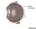 Retinal detachment repair - series