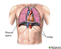 Pneumothorax - series - normal anatomy