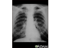 Coal worker's lungs - chest X-ray