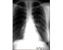 Coccidioidomycosis - chest X-ray