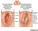Developmental disorders of the vagina and vulva