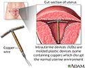 Intrauterine device