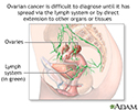 Ovarian cancer dangers