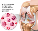 Gonoccocal arthritis
