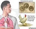 Acute histoplasmosis