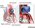 Left atrial myxoma