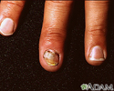 Nail infection, candidal