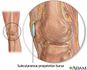 Bursa of the knee