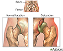 Dislocation of the hip