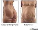 Liposuction - series