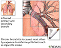 Cause of chronic bronchitis